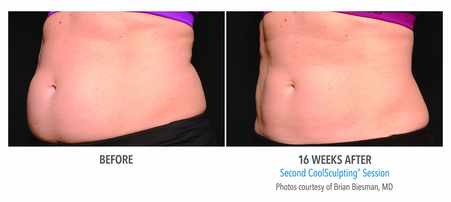 CoolSculpting Before and After - Female Abdomen